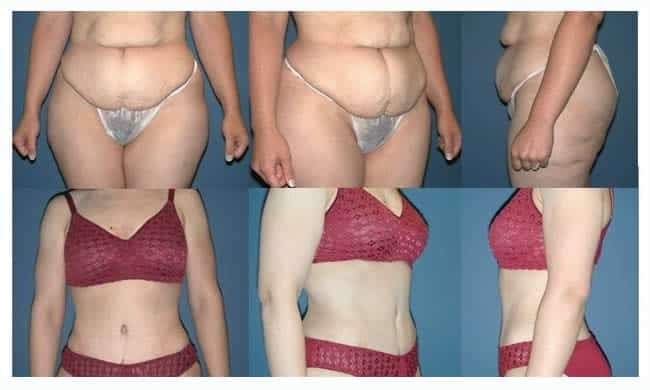 before & after tummy tuck chicago