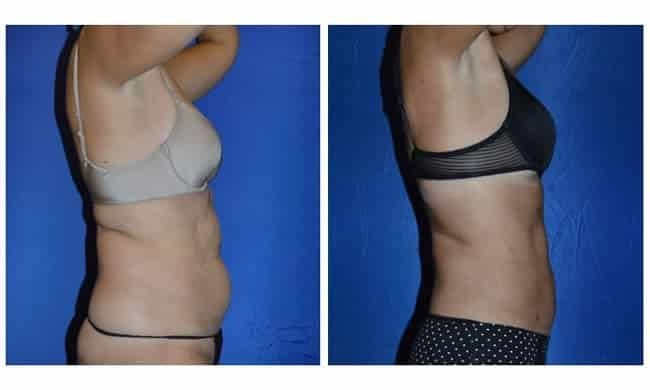 best liposuction chicago