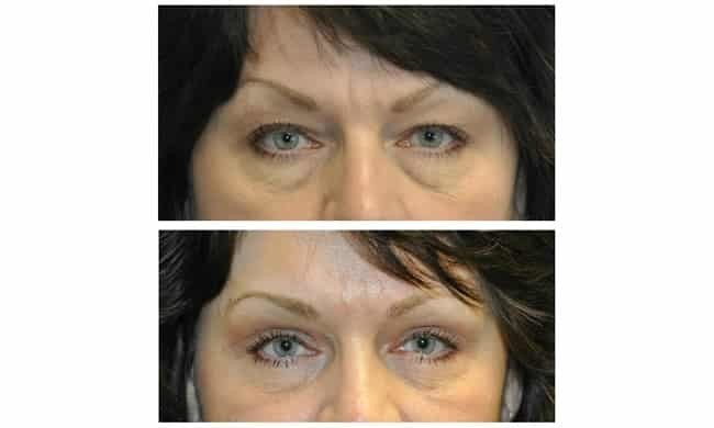 before and after an endoscopic brow lift for upper eyelids
