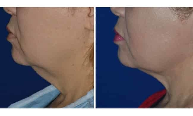 neck plastic surgery