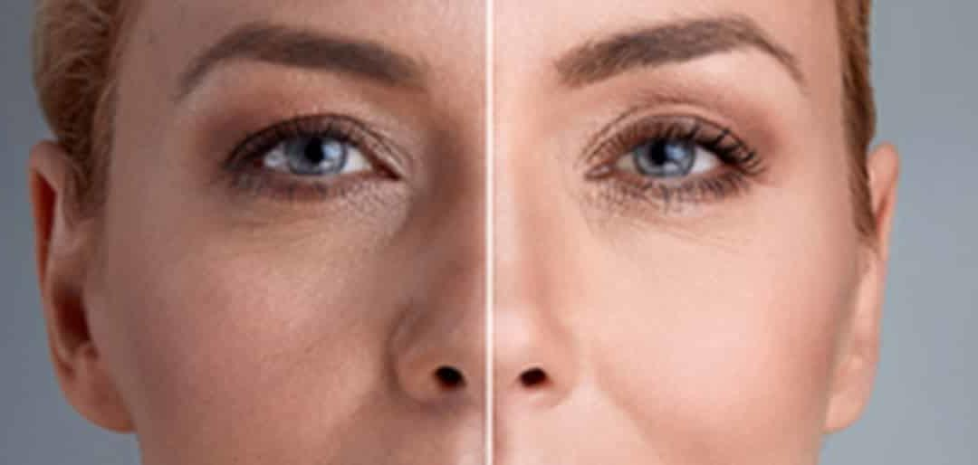 What can a laser skin treatment do for your skin?