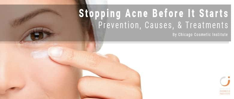 stopping acne before it starts blog featured image by chicago cosmetic institute