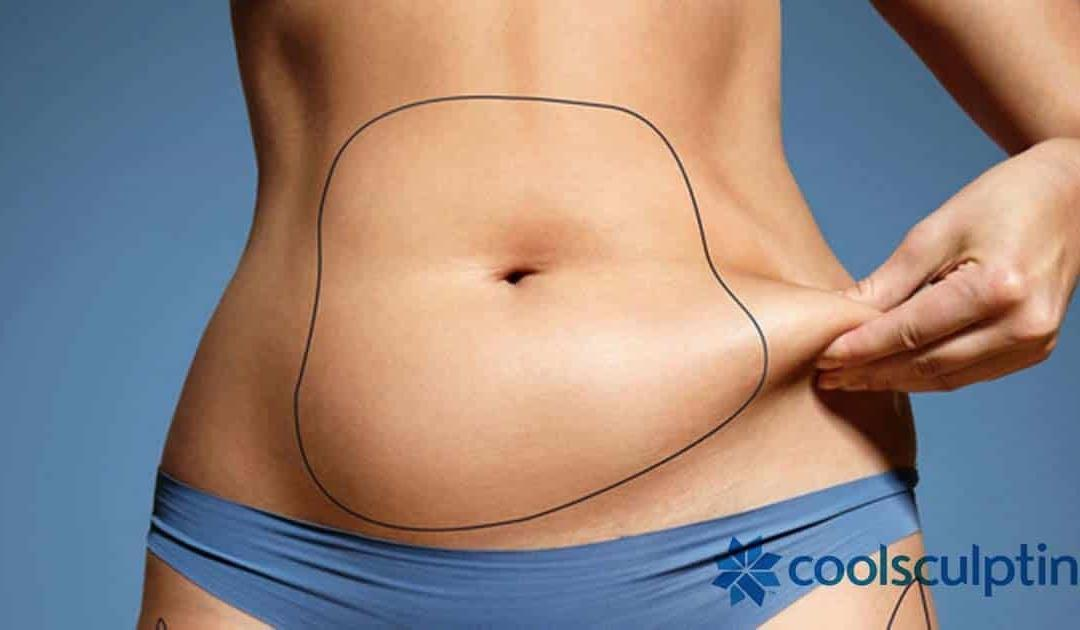 The Ultimate CoolSculpting Guide by Chicago Cosmetic Institute