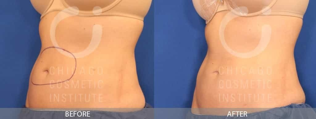 BEFORE AND AFTER BELLY HALF SIDE