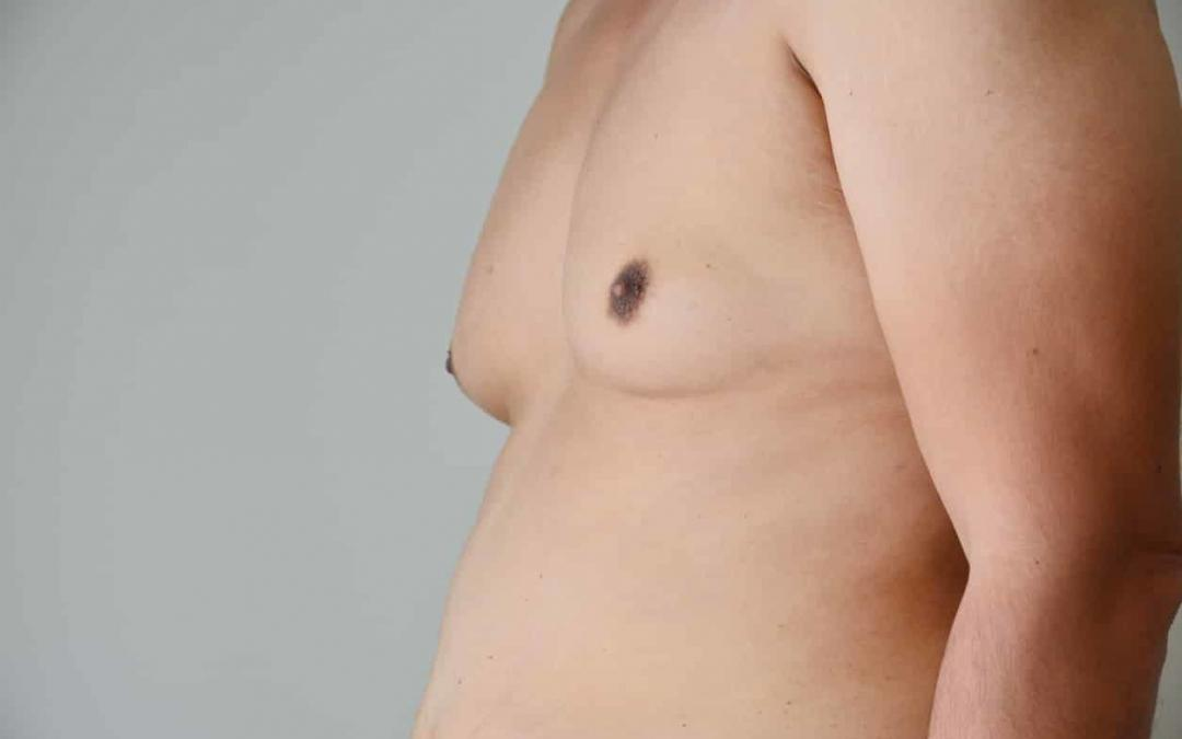 Solving Man Boobs | Gynecomastia Surgery for Male Breast Reduction