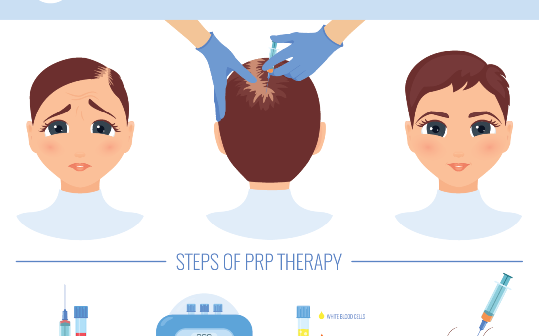 Platelet Rich Plasma (PRP) Therapy: A Beginners Guide