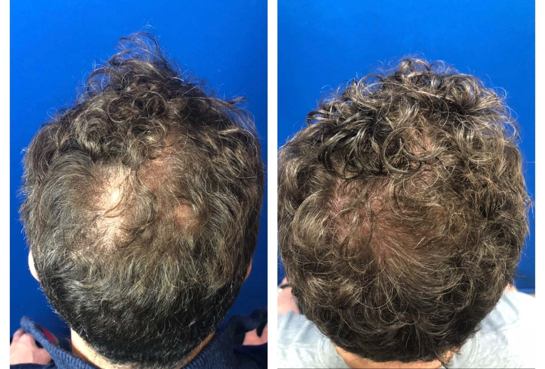 before and after platelet rich plasma for hair loss treatment