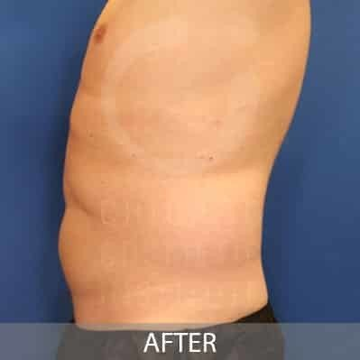 after-coolsculpting-belly-fat-photo
