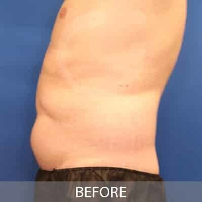 before-coolsculpting-belly-fat-photo