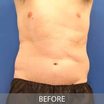 before-coolsculpting-flanks-photo
