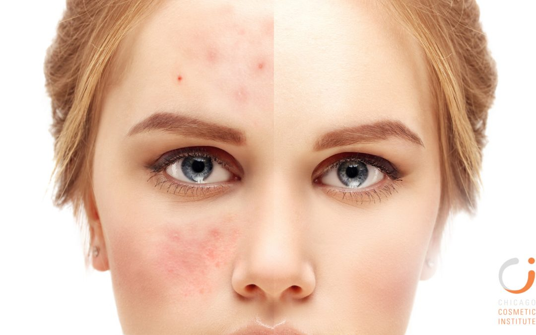 Acne Prevention, Causes, and Treatments Q&A